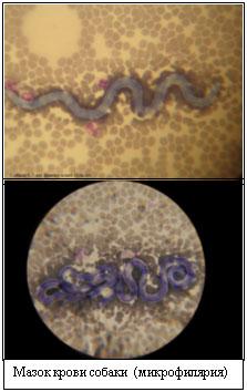 внутренние паразиты человека лечение